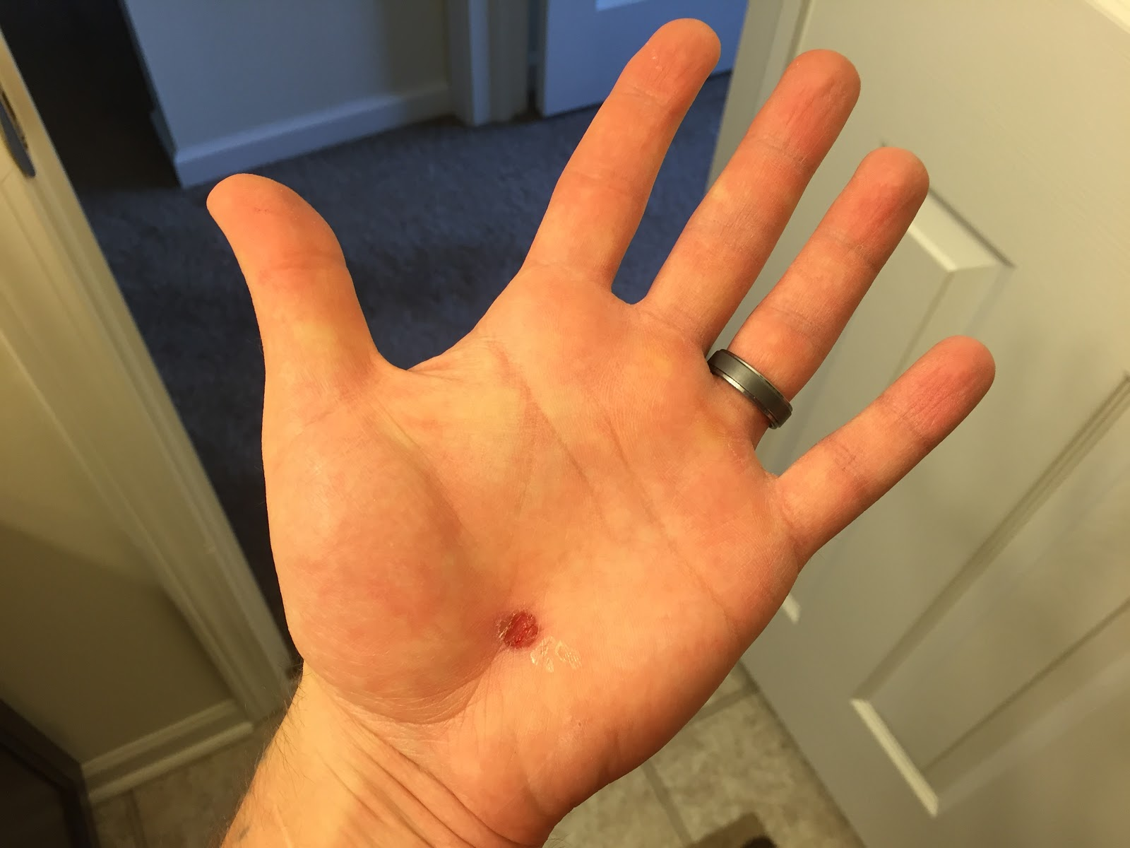 blister on hand
