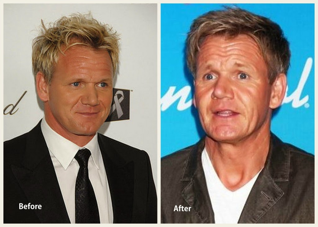 Gordon Ramsay Plastic Surgery Facelift Before and After ...  Gordon Ramsay Botox