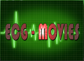 Steps tutorial install ECG Movies add-on for Kodi.