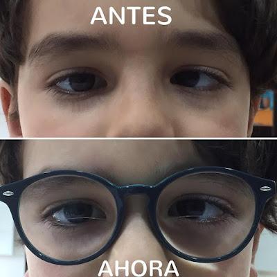 imagen de niño con estrabismo antes y después