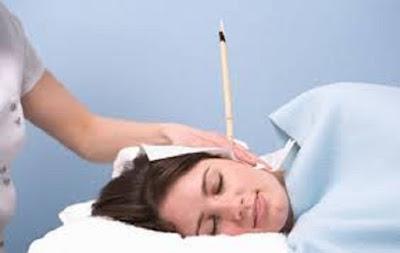 Cone Chinês para limpeza de ouvidos, excesso cerume, surdez, pressão interna, umidade, cerosidade, coceira, zumbidos, irritação e sensação entupimento