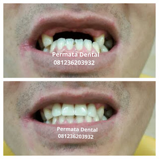 pasang gigi palsu bali| pasang gigi palsu denpasar| pasang gigi palsu jimbaran| pasang gigi palsu nusadua| pasang gigi palsu kute| pasang gigi palsu badung | pasang gigi palsu gatsu | pasang gigi palsu situbondo | pasang gigi palsu cepat | pasang gigi palsu mudah | pasang gigi palsu murah | pasang gigi palsu bagus | pasang gigi palsu atas |pasang gigi palsu depan | pasang gigi palsu bawah | pasang gigi palsu atas | pasang gigi palsu benar | pasang gigi palsu geraham | gambar gigi palsu lepas pasang | gambar sebelum dan sesudah pasang gigi palsu lepas pasang