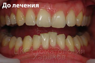 Скученное положение зубов нижней челюсти, супраокклюзия фронтальных зубов