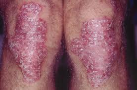 Obat Gatal Eksim Pada Bagian Lutut