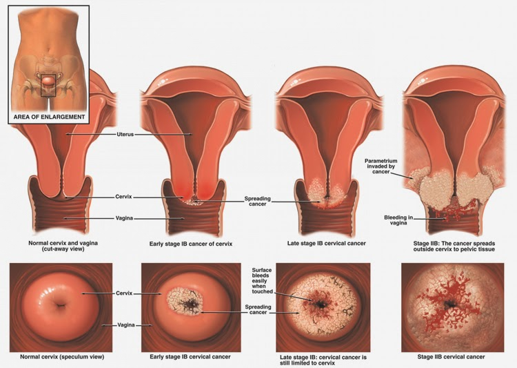 tuala wanita mungkin punca barah pangkal rahim