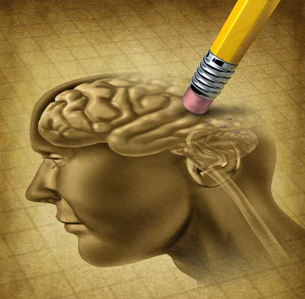 Tanda dan Gejala Penyakit Alzheimer