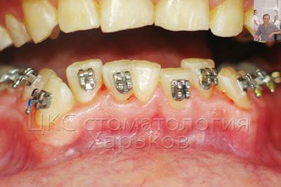 Фото зубов после установки брекет системы