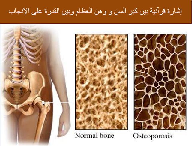 إشارة قرآنية بين كبر السن و وهن العظام وبين القدرة على الإنجاب.