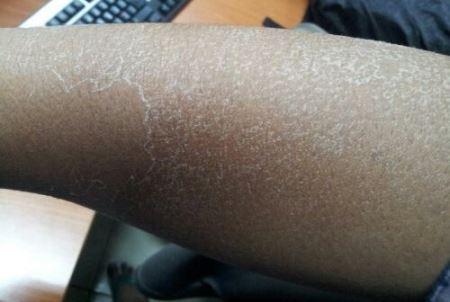 cara alami mengatasi kulit kering dengan tepat