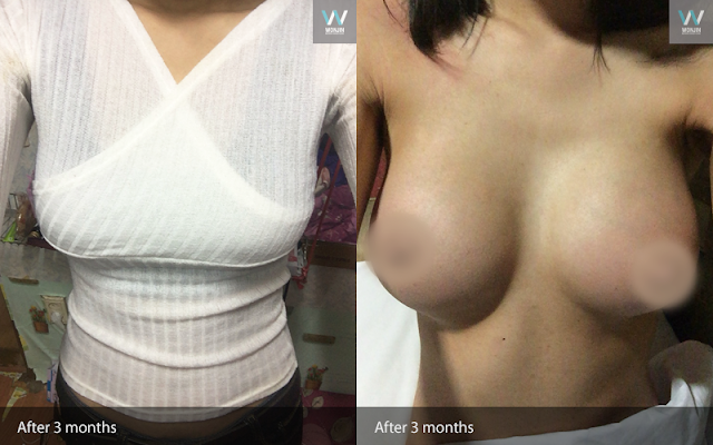 짱이뻐! - Korea Plastic Surgery Review (Breast Surgery) (Full Version)