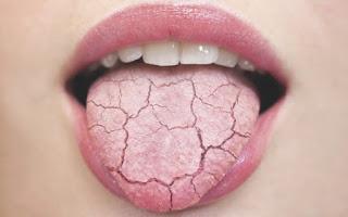 seca lengua saca