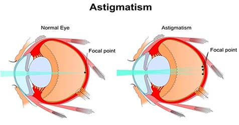 Astigmatism Causes Symptoms and Treatments