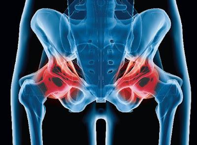 Comment éviter l'usure de la hanche