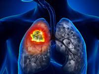 Hilangkan Tar dan Cegah Kanker Paru-paru dengan Makanan Ini