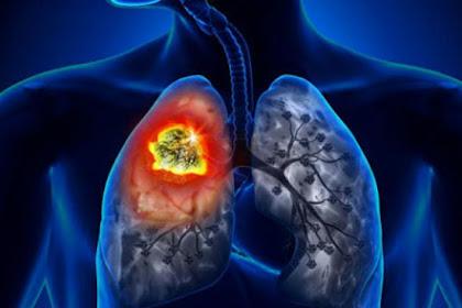 6 Cara Mudah Hilangkan Tar dari Paru-paru