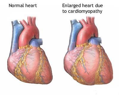 Cara Mengobati Jantung Yang Bengkak Secara Alami