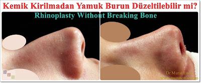 Yamuk burun tedavisi - Eğri burun tedavisi - Eğik burun ameliyatı - Kemik kırmadan burun estetiği - Burun ucu estetiği - Burun kemeri törpüleme - Kıkırdak macunu ile yamuk burun düzeltme - Eğri burun ameliyatı izle - Yamuk burun ameliyatı - Burun ucu ameliyatı - Rhinoplasty without breaking bone - Rhinoplasty in istanbul - Tip plasty in istanbul