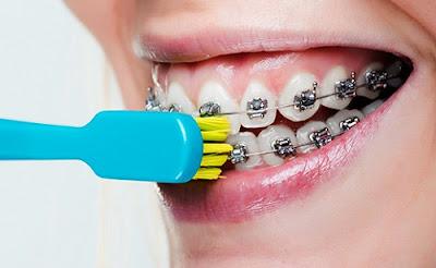3 lý do nên bọc sứ thay vì niềng răng -4