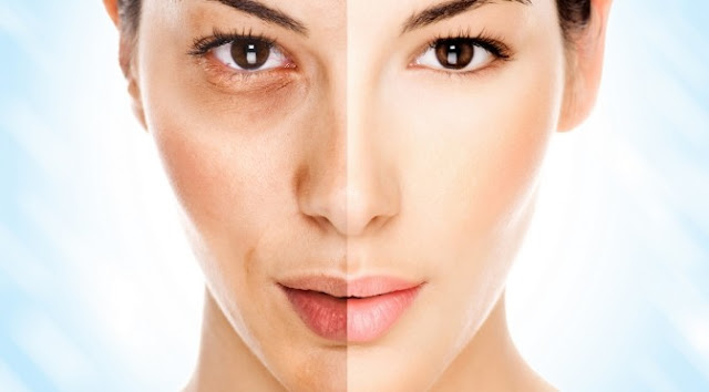 How To Treat Uneven Skin Tone Naturally