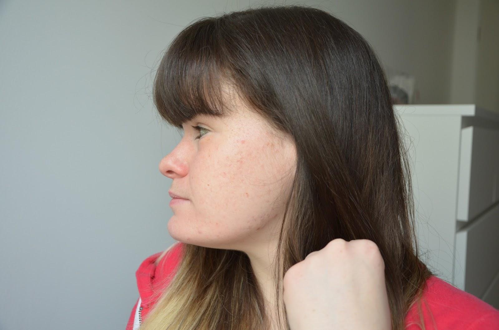 bilan, 1 an de traitement contre l'acné côté gauche