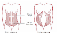 diástasis embarazo