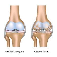 Cara Sehat atasi Arthritis