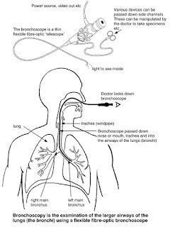 Prosedur bagaimana Bronchoscopy dijalankan