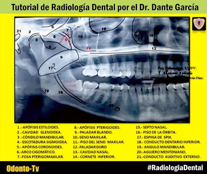 RADIOLOGÍA ORAL: Tutorial de anatomía radiológica por el Dr. Dante García