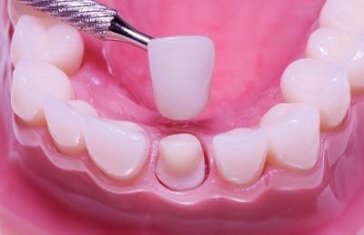 Bọc răng sứ giải pháp chữa răng cửa bị mẻ tốt nhất