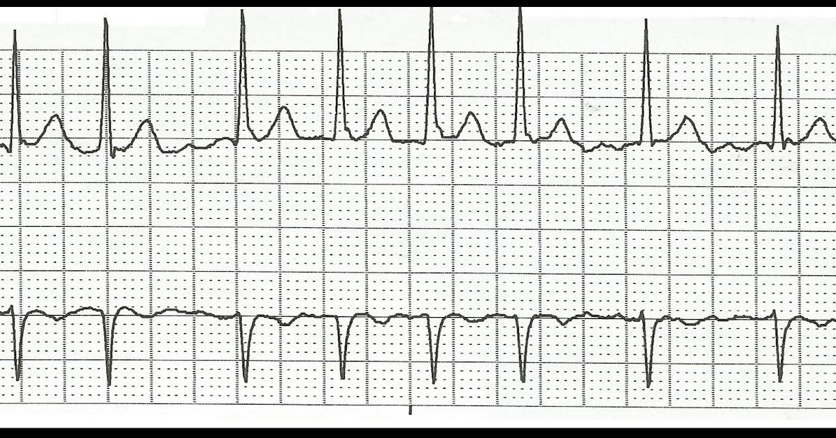 Float Nurse: Practice EKG Rhythm Strips 177