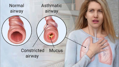 Causes Of Asthma And Its Top Early Symptoms