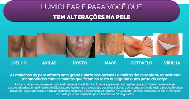Clareamento pele