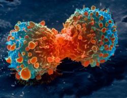 Tahap Pembelahan Sel Mitosis dan Sel Meiosis