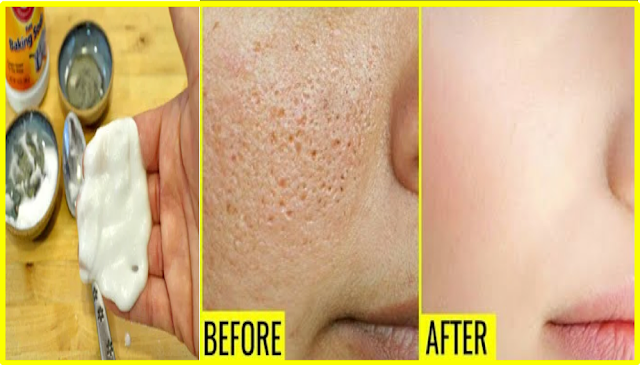 Get Rid of Large Open Pores and Acne Scars Permanently Using Natural Ingredients At Home