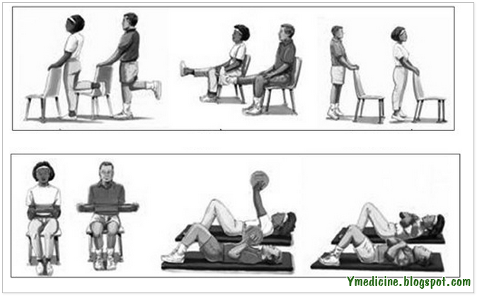 Exercise for arthritis patients