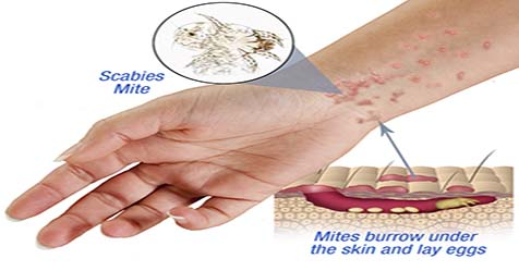 Scabies Symptoms Treatment and Prevention