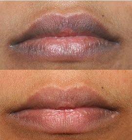9 Hal Penyebab Bibir Hitam