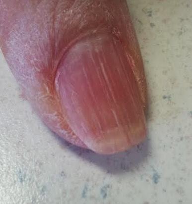 dry skin and nail