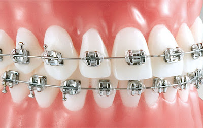 What does orthodontic treatment involve?