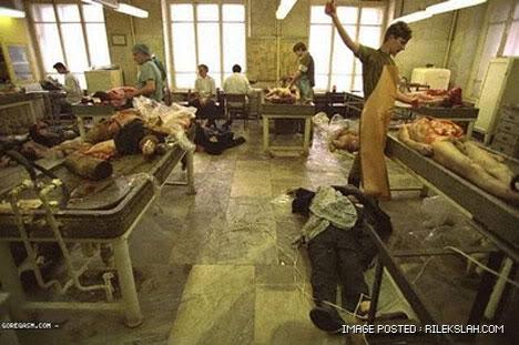 kilang-proses-organ-manusia-12.jpg