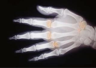 Jenis Penyakit Tulang dan Penyebabnya