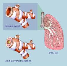 Cara Mengurangi Gejala Bronkitis Kronis