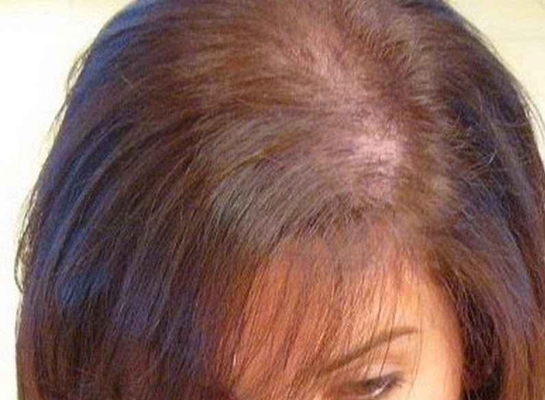 Hair Loss Is An Issue For Women Too Hair Loss Talk