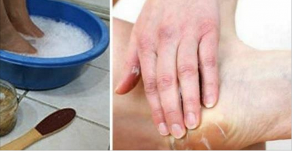 Get Rid Of Dry And Cracked Feet