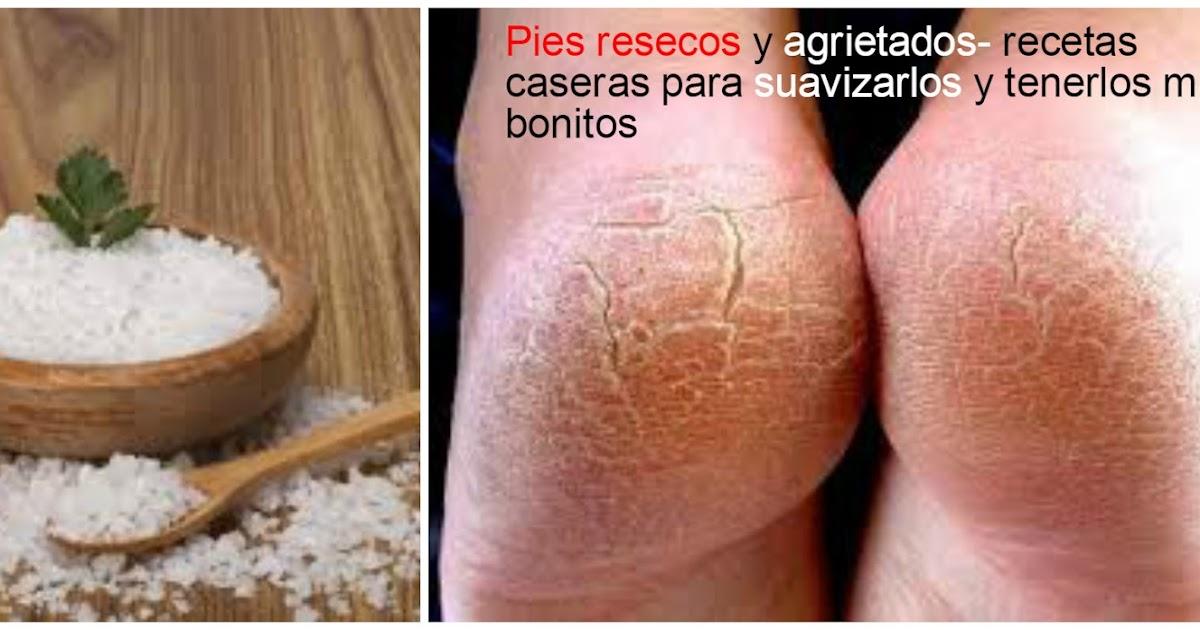 tratamiento para los pies resecos y agrietados