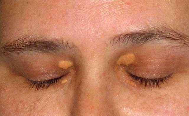 Remove Cholesterol Deposits Around The Eyes
