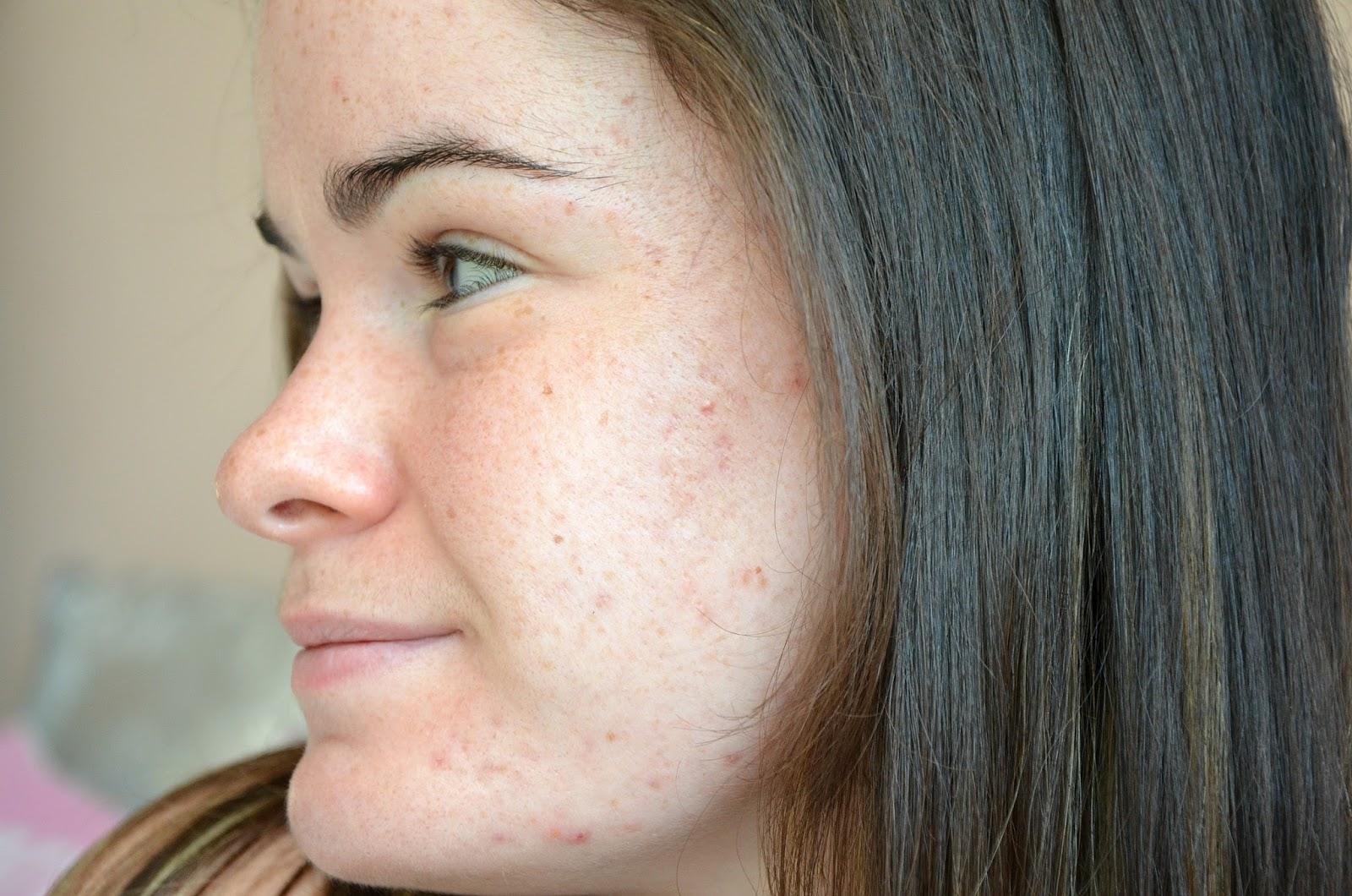 bilan du cinquième mois de traitement contre l'acné joue gauche