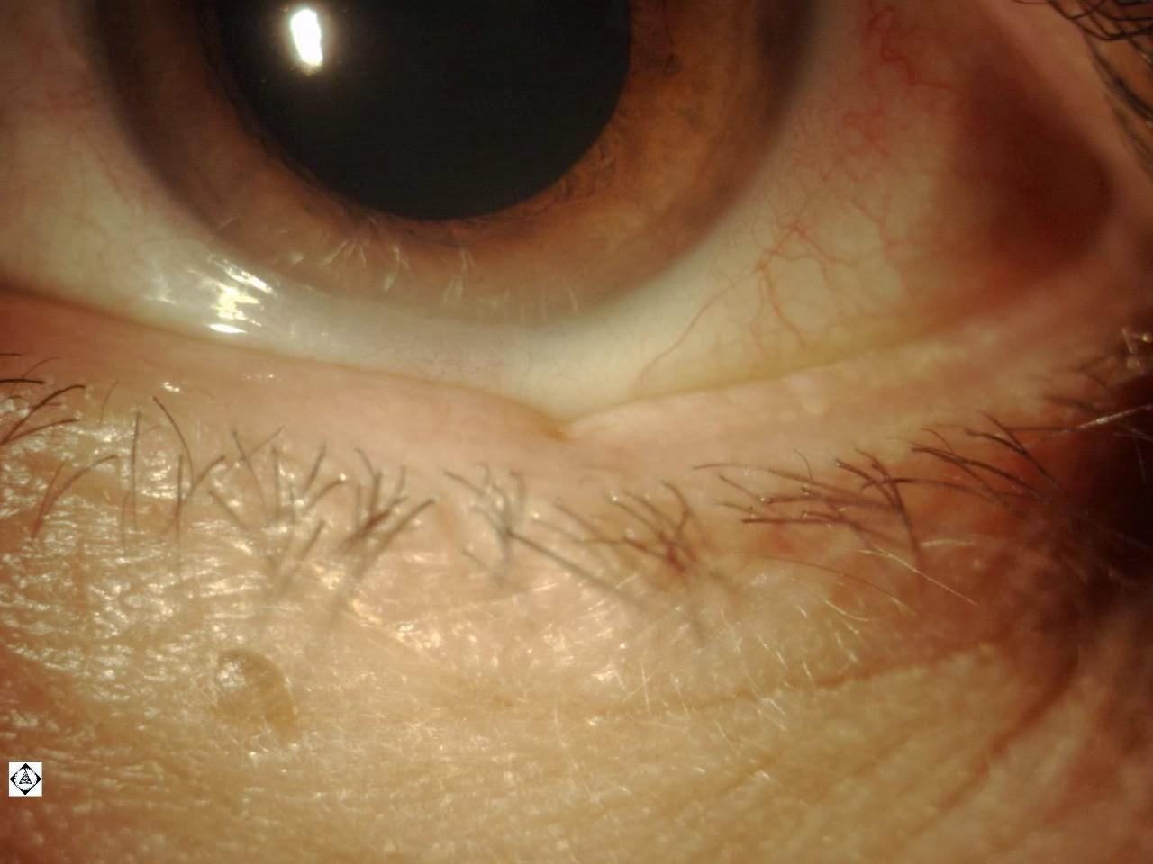 blood in lower eyelid
