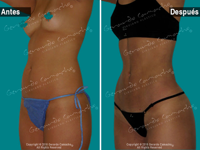 Y marcacion mujeres despues antes abdominal