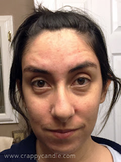 Retin-A Purge – 6 Month Review :: The Acne Experiment